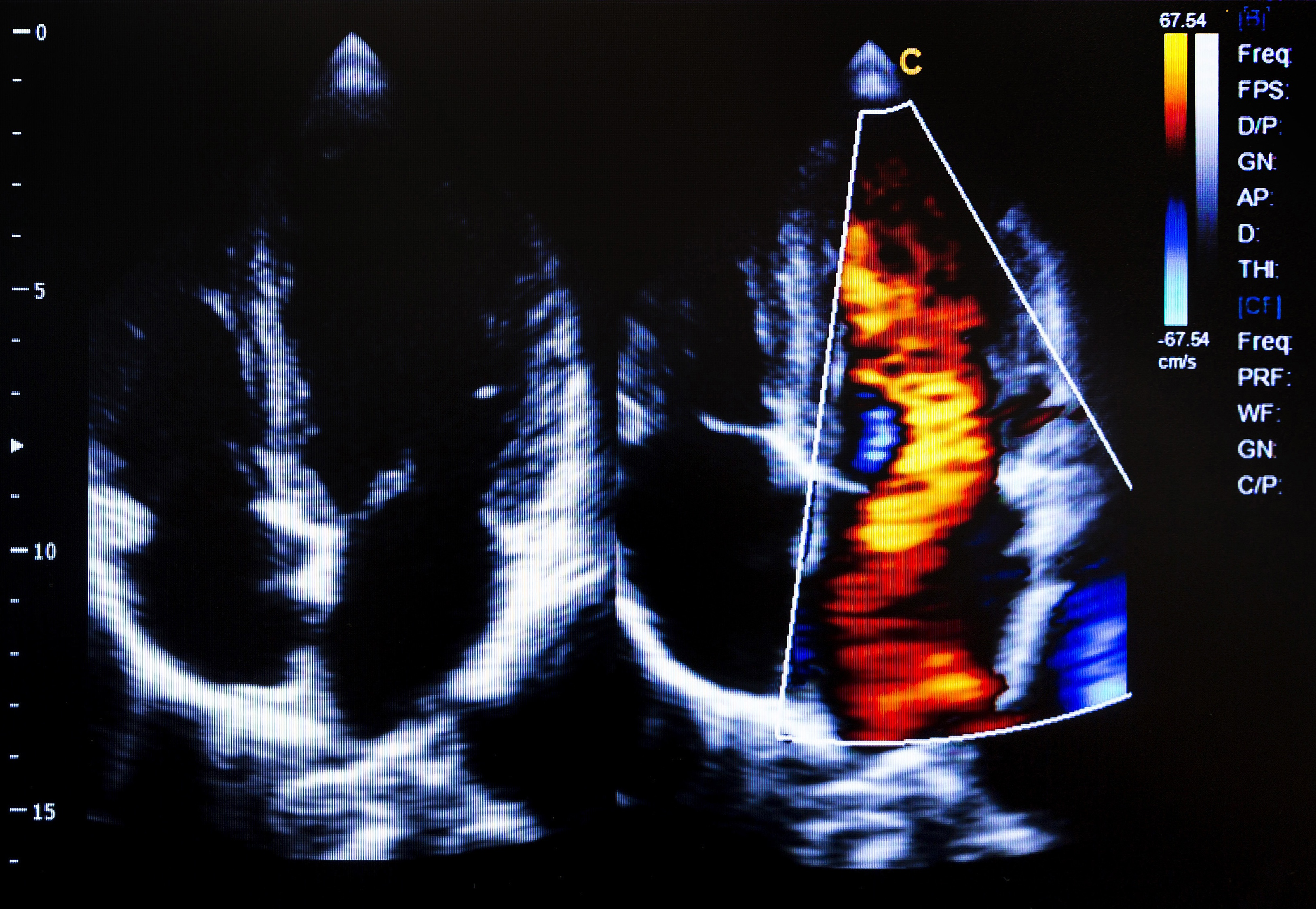 Telecardiology: Using Off-Site Cardiologists to Interpret Cardiac Imaging Studies